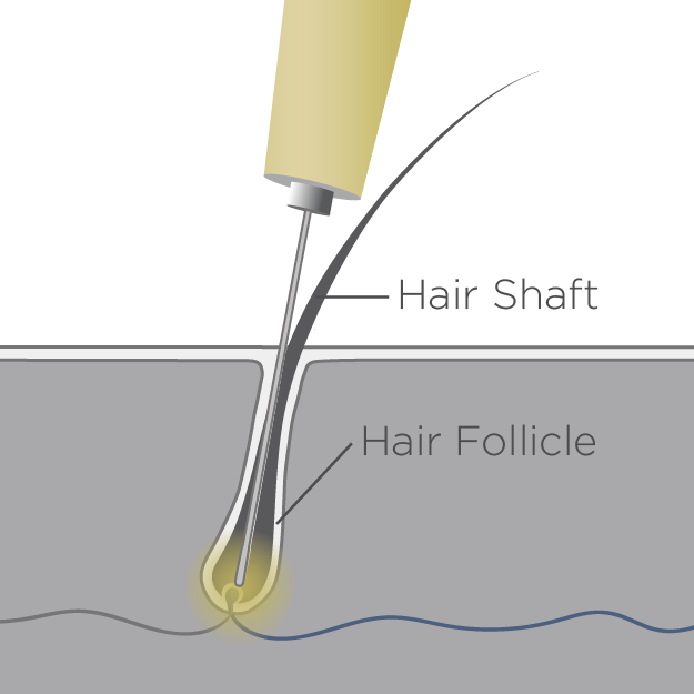 Permanent Hair Removal Diagram